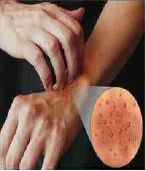 Le sel avec la soude au psoriasis