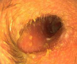 psoriasis en goutte angine
